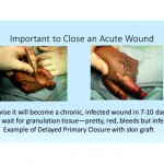 Webinar: Wound Care in Resource Limited Settings